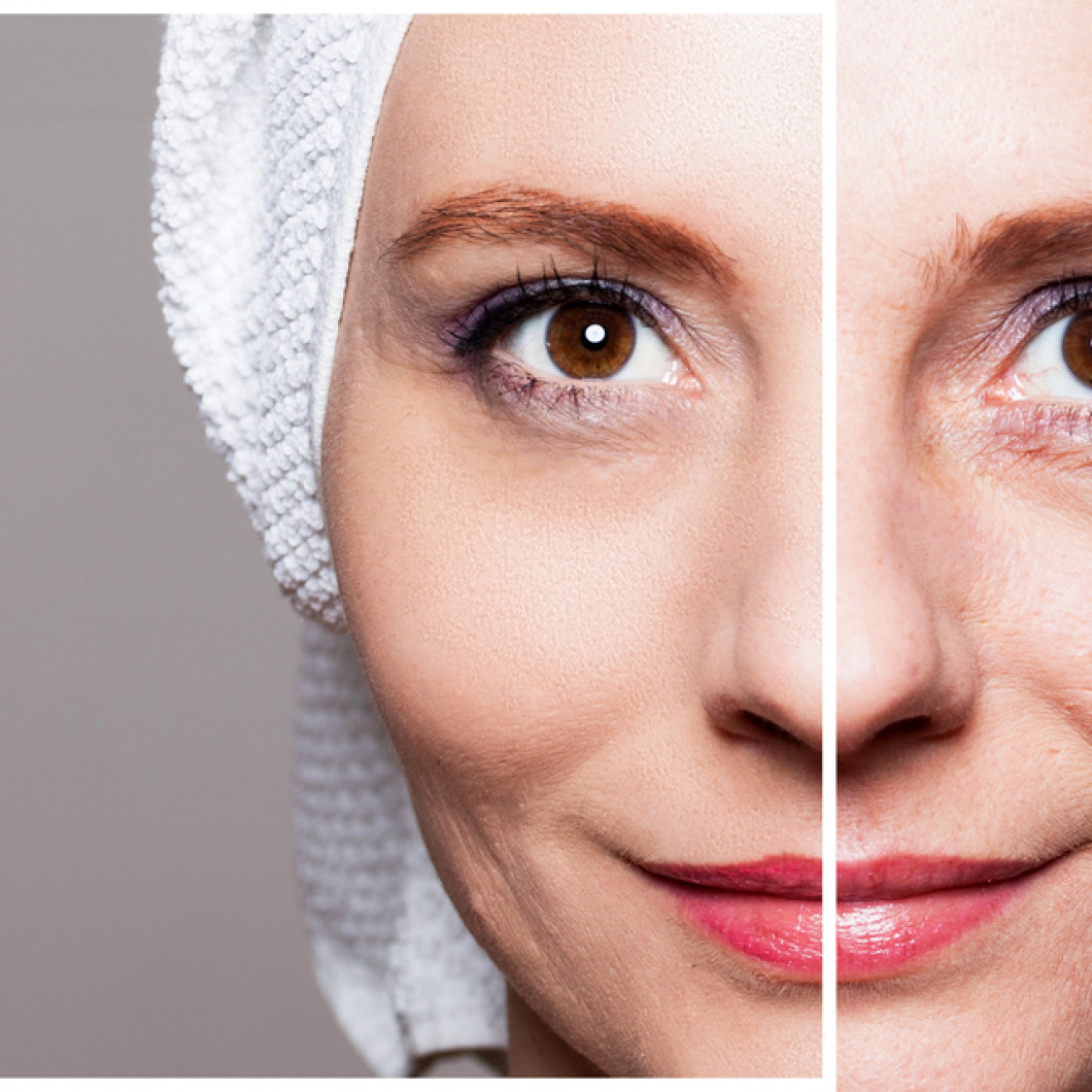 Would You Like to Improve the Appearance of Your Facial Lines and Wrinkles?
